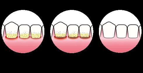 Tannkjøttbetennelse | Tannkjøttsykdom | Enkel rens og puss