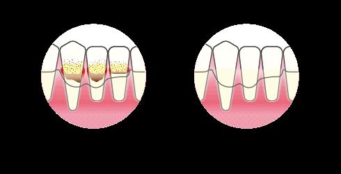 Tannkjøttbetennelse | Ikke kirurgisk rens | Kolbotntannklinikk