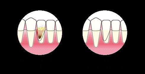 Tannkjøttbetennelse | Kirurgisk omfattende rens | Kolbotntannklinikk