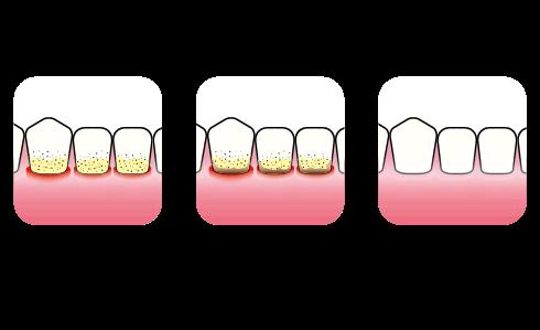 Gingivitt - behandling   Kolbotn Tannklinikk