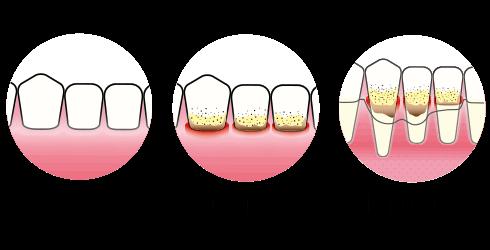 Tannkjøttbetennelse | Litt om gingivitt og periodontitt