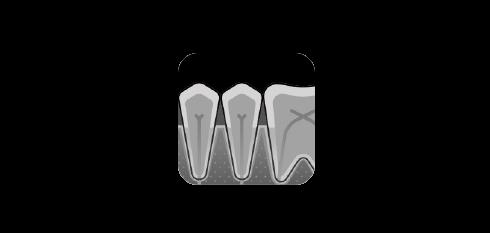 Gingivitt - røntgen   Kolbotn Tannklinikk
