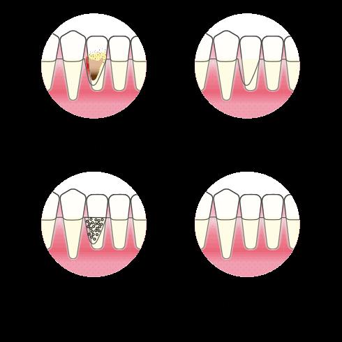 Kirurgisk omfattende rens med vevsstyrt tilheling behandling 490px