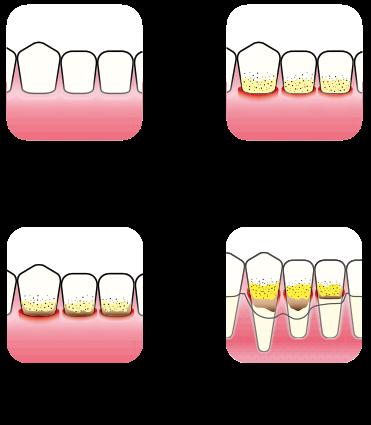 Periodontitt årsak og utvikling   Kolbotn Tannklinikk