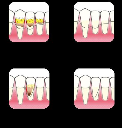 Periodontitt behandling   Kolbotn Tannklinikk