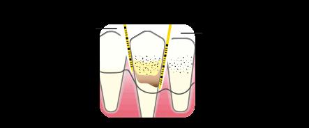 Periodontitt diagnose lommedybdemåler   Kolbotn Tannklinikk