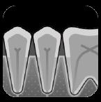 Periodontitt røntgen   Kolbotn Tannklinikk
