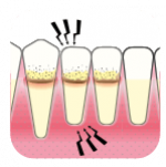 Periodontitt symtomer   Kolbotn Tannklinikk