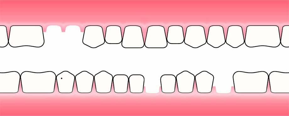 Kunstig tann