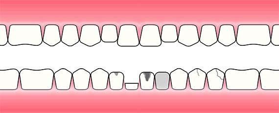 Oppbygging av tann
