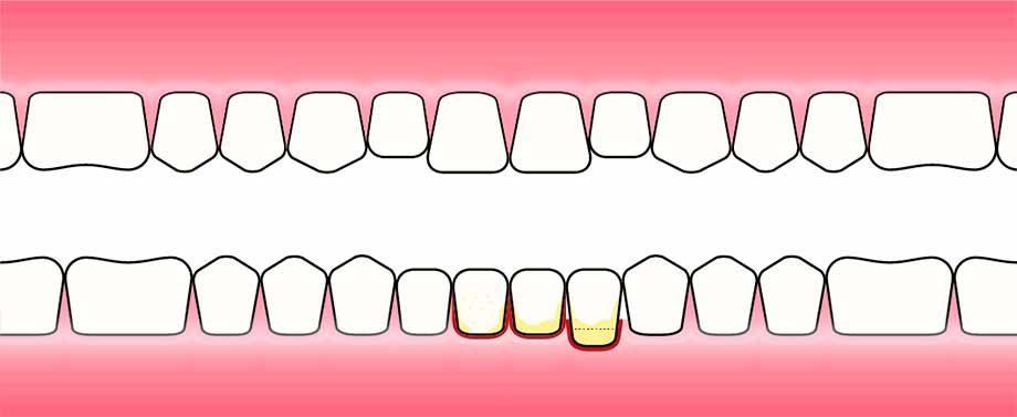 Tannkjøttsbehandling